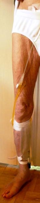 Klotz am Bein: Urinbeutel